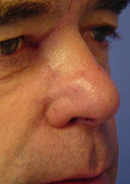 Tumor In Der Nase