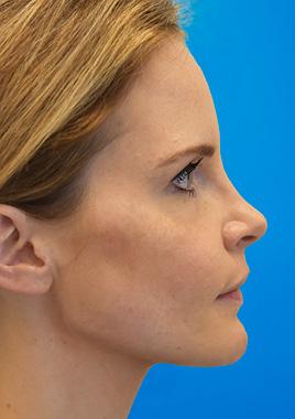 chin surgery - genioplasty