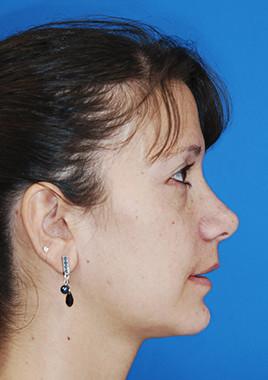 Gesichtsasymmetrie- Asymmetrie des Kiefers