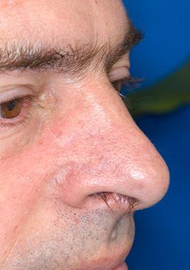 Hautkrebs - Basaliom - Tumor